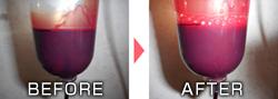 血液クレンジング オゾン療法