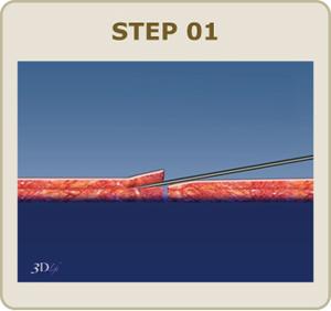 皮膚に針で穴を開け、専用のニードルで糸を通します。