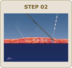 針の穴から反対方向へ、 専用のニードルで糸のもう一端を通します。