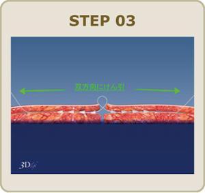 糸の両端を引っ張り、糸を皮膚の下へ 埋没させます。